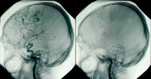 Brain death photo illustration 2